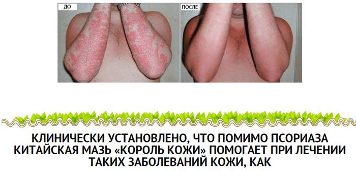 kak-udalit-borodavki-vozle-analnogo-otverstiya